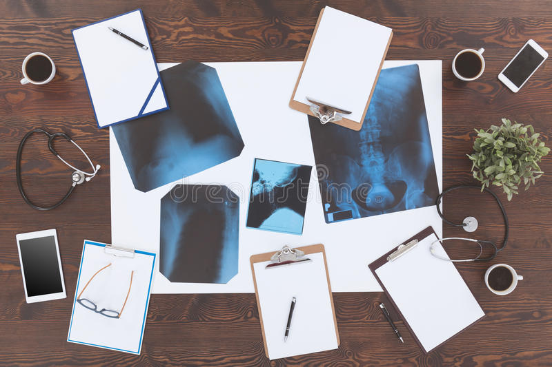 X-ray picture and stethoscopes stock photography
