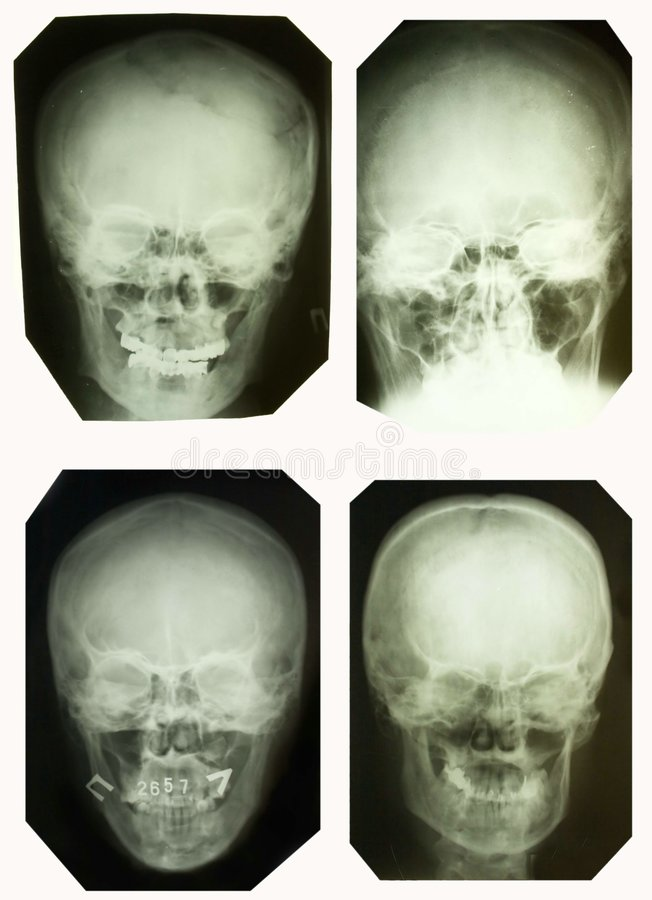 X-ray pictures stock photography