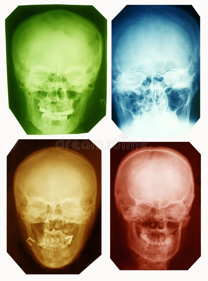 X-ray pictures. Collection of colored x-ray pictures of the skulls royalty free stock image