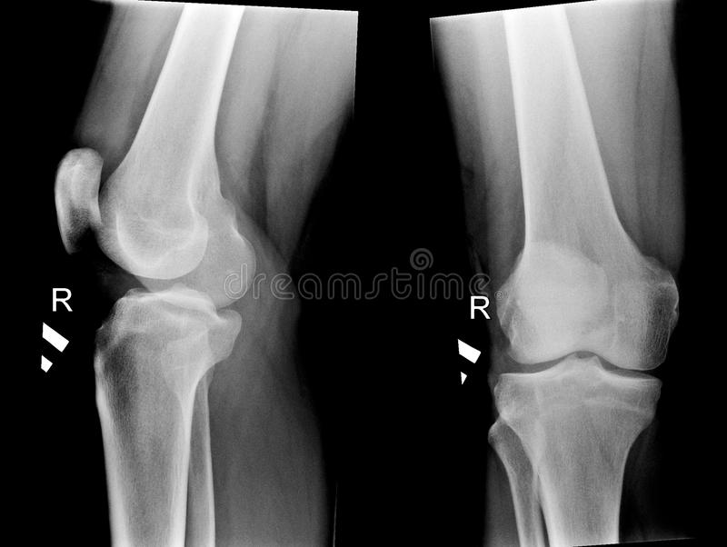 X-ray pictures of human knee joints stock image