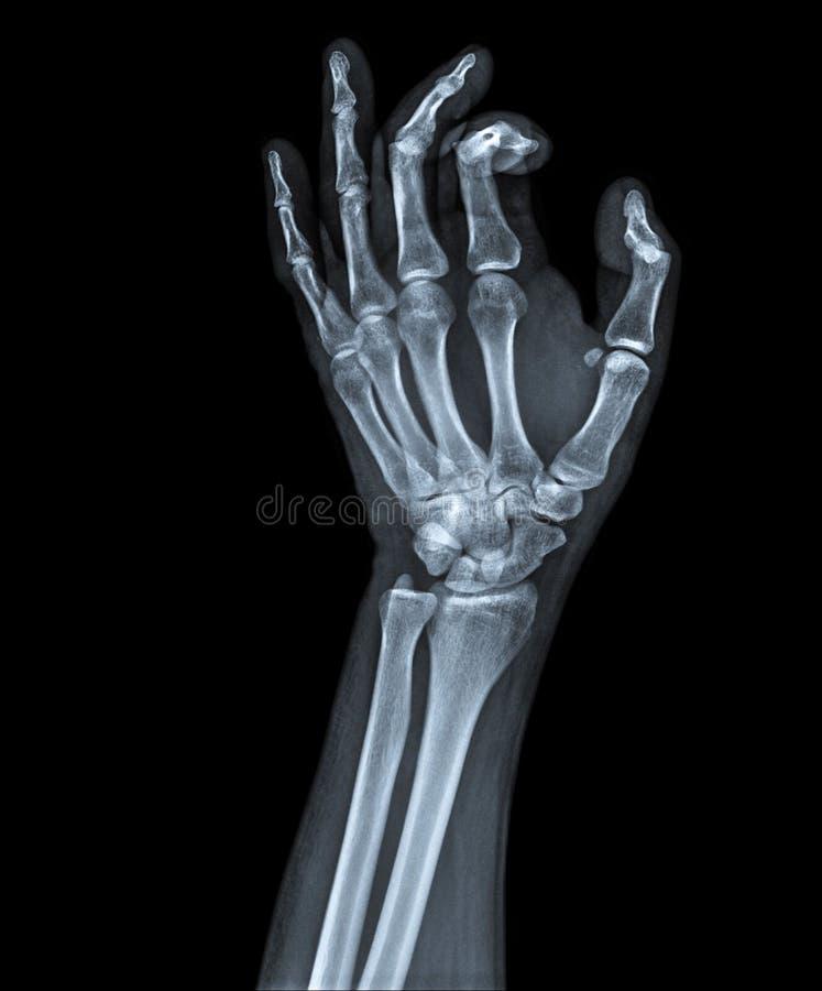 X Ray ręka zdjęcie stock
