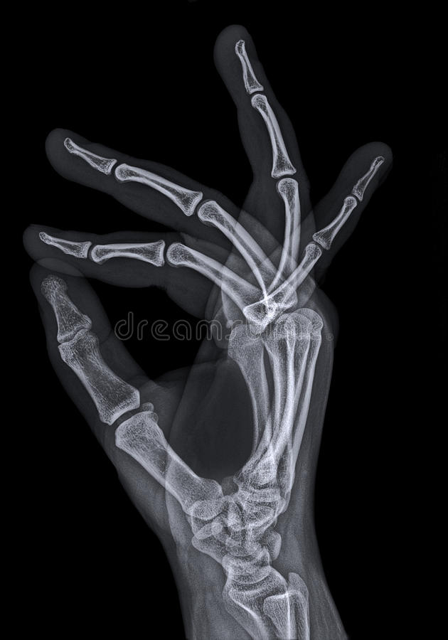 X ray or radiograph of hand royalty free stock photos
