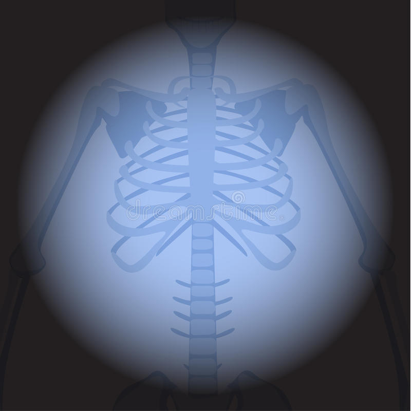 X ray ribs. Human skeleton`s part on black background vector illustration