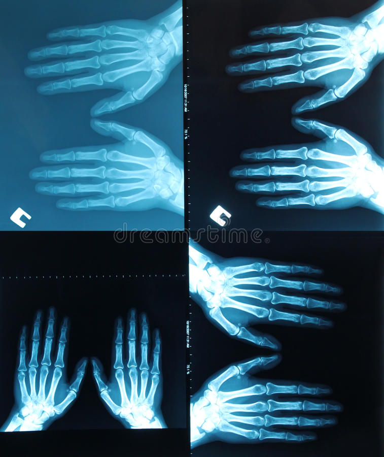 X-ray scanning royalty free stock image