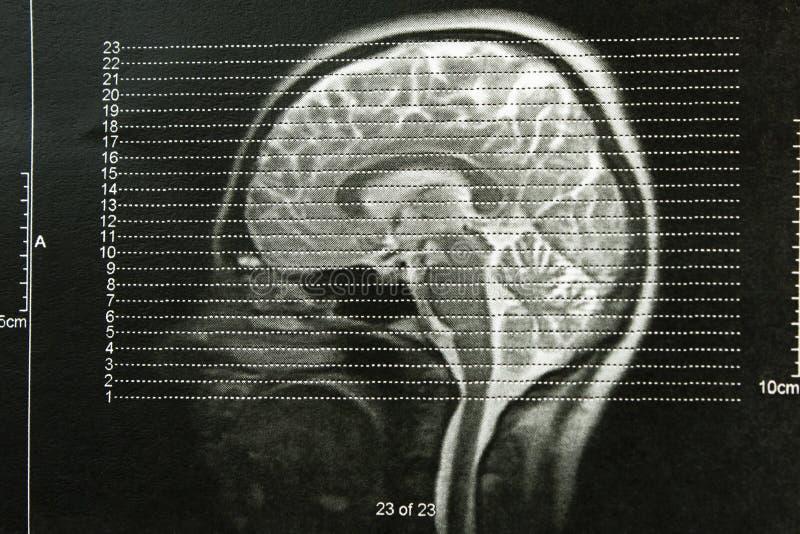X-ray schedels van het EEG royalty-vrije stock afbeelding
