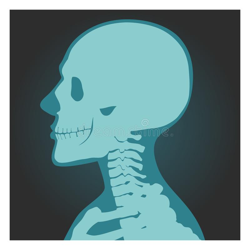 X-ray shot of skull, human body, head and neck bones side view, radiography, vector illustration. stock illustration