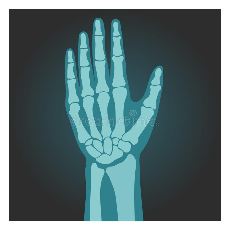 X-ray shot of wrist, human body, bones of hand, radiography, vector illustration. royalty free illustration