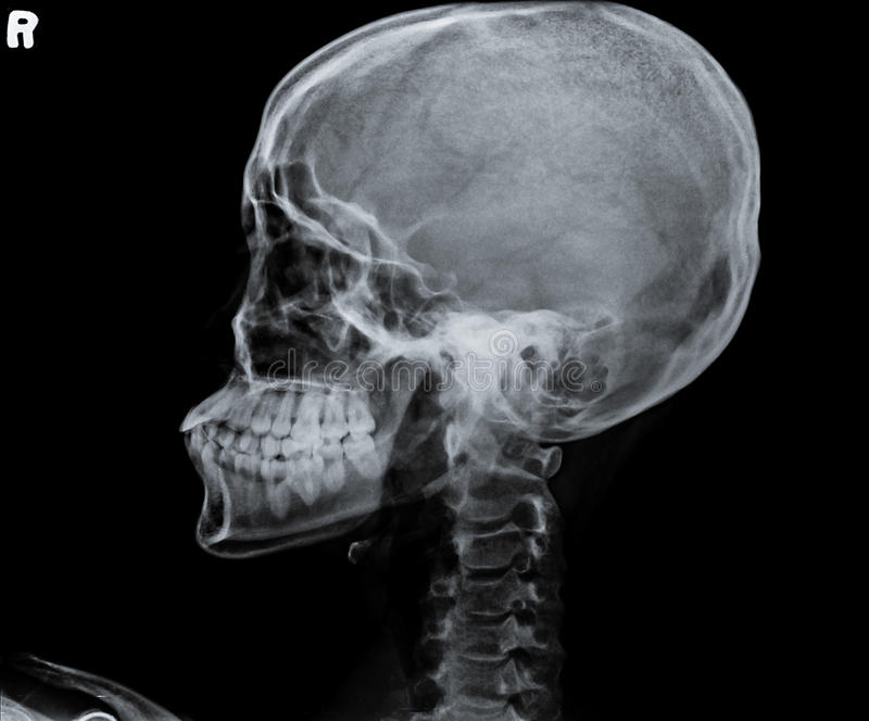 X Ray Of Side View Of Human Child Skull. Stock Photo ... X Ray Views Of Skull