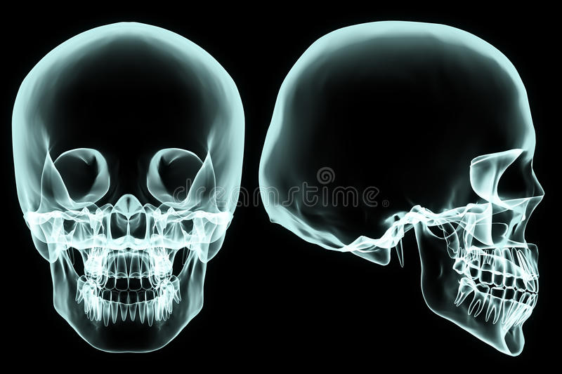 X-ray skull. X-ray front and side skull in brightness blue with black background vector illustration