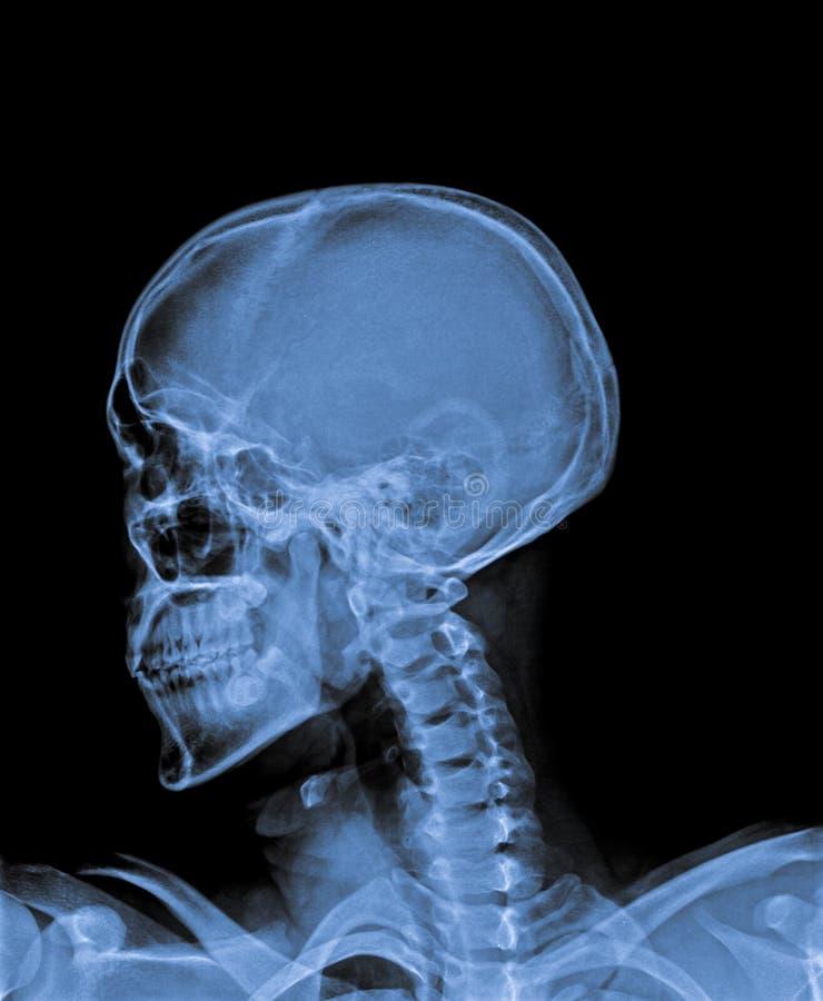 X Ray of Skull. stock image. Image of anatomy, bone - 74660853