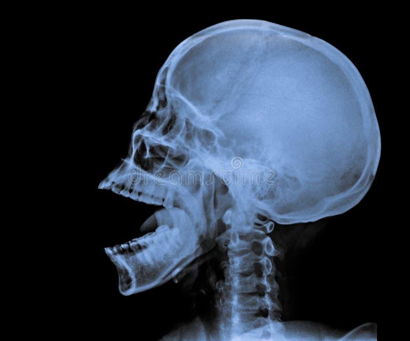 X Ray of Skull. stock image. Image of radiation, anatomy - 74641553