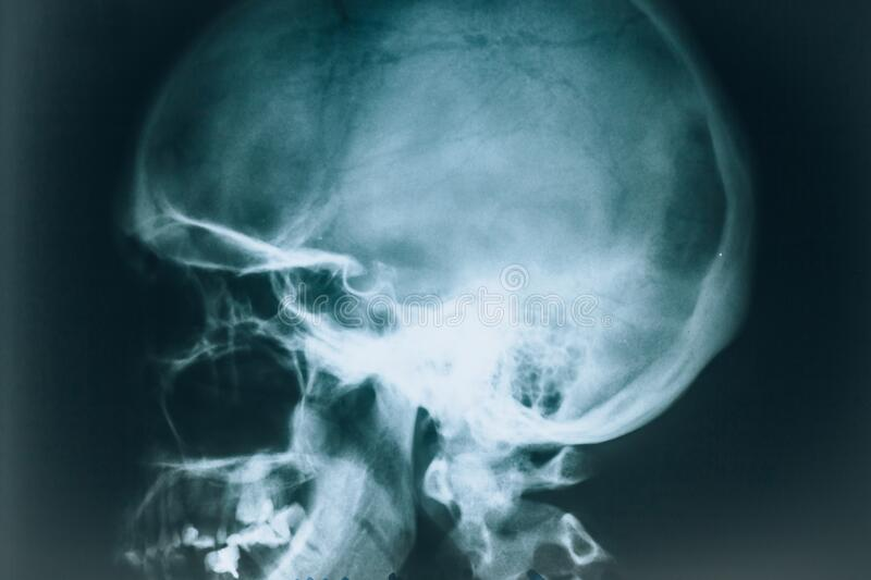 X-ray of the skull. X-ray of the head, side view. Human bones. At the doctor. At the doctor. Examined by a radiologist. Real x-ray. Medical theme royalty free stock images