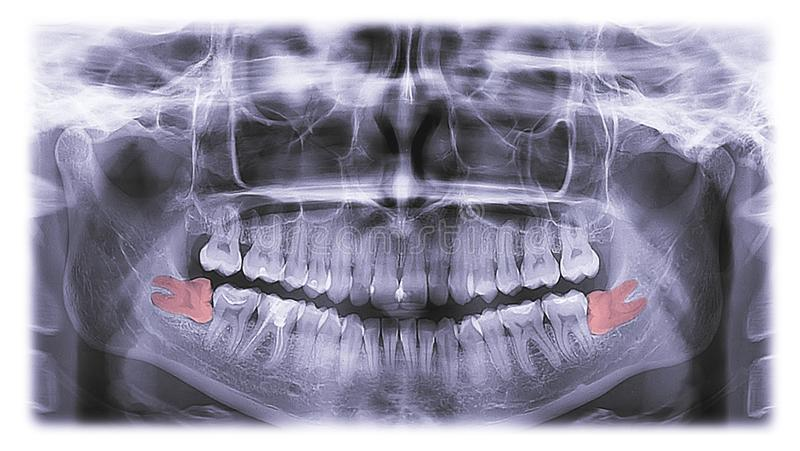 X-ray of teeth, molar tooth improperly growing stock image