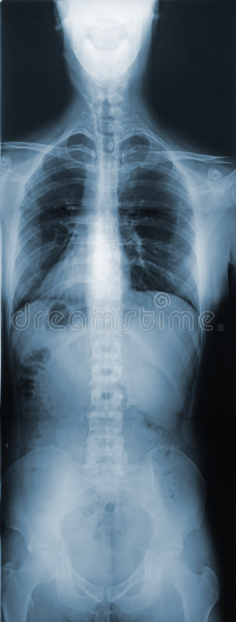 X-Ray of the Torso. This is an X-ray of the whole torso royalty free stock photo