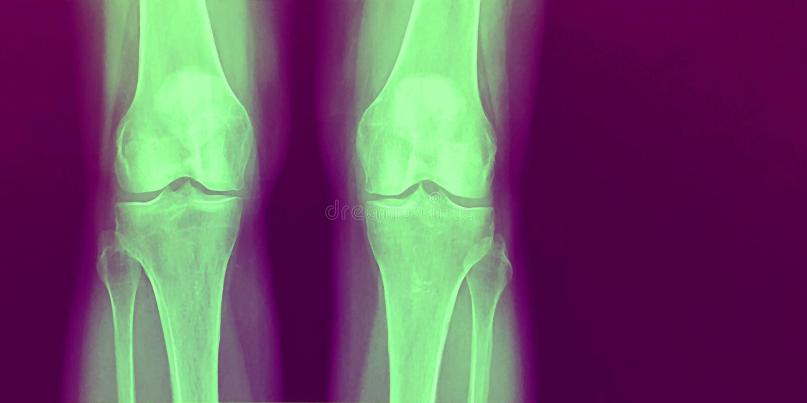 X-Ray of two healthy knee bones in green and purple. Front view of a scary Halloween skeleton image of a knee joints...bones standing royalty free stock photos