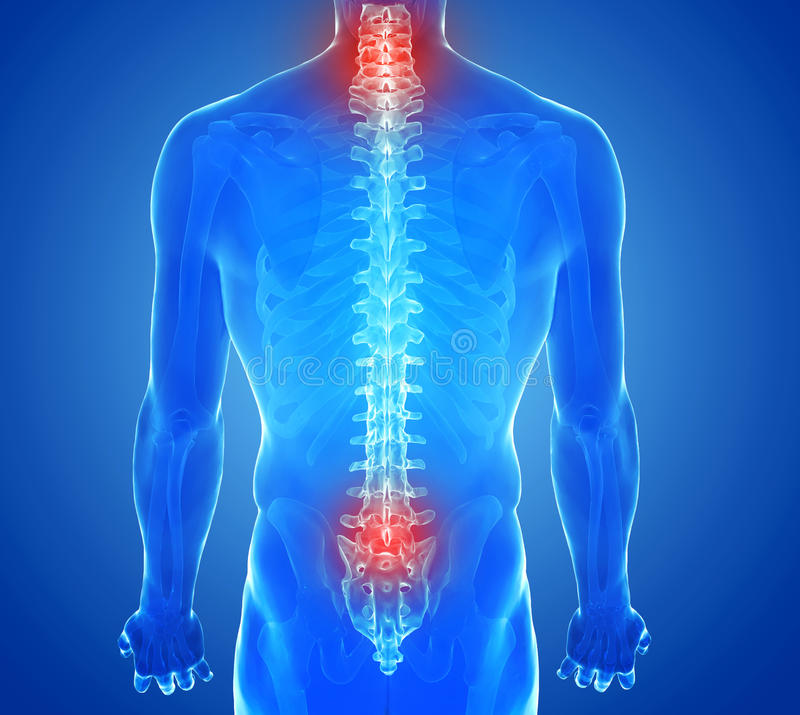 X-ray view of Spine pain - vertebrae trauma stock images