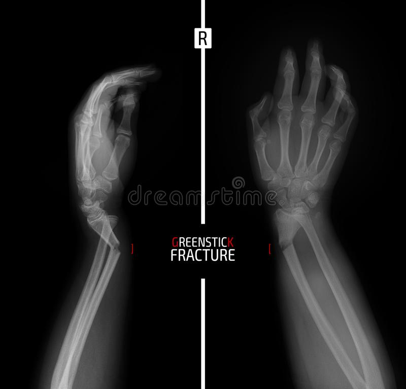 X-ray of the wrist. Greenstick fracture of the radius. Marker. Right royalty free stock photos