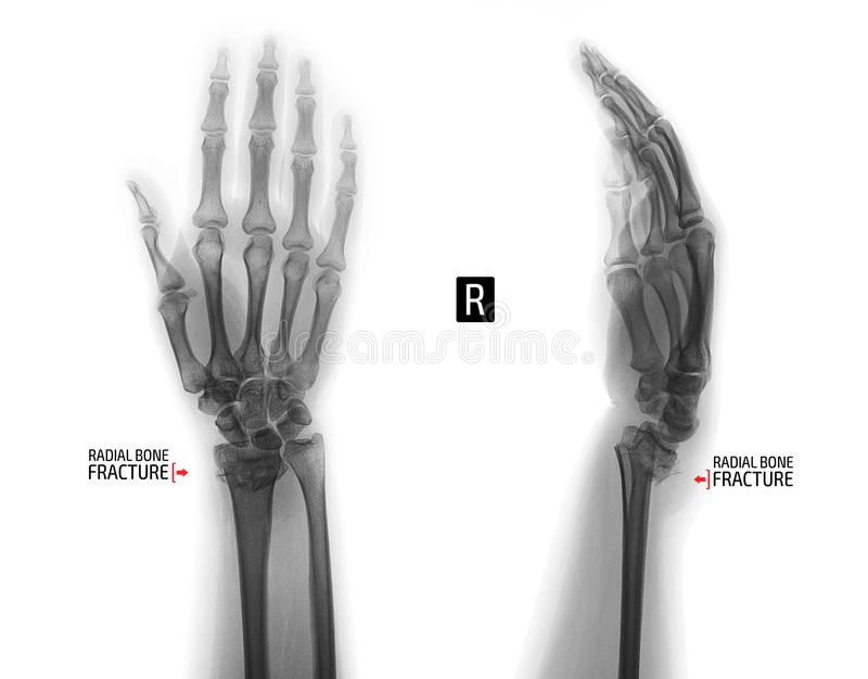 X-ray of the wrist joint. Fracture of the radius. Negative. Marker. Right stock photography