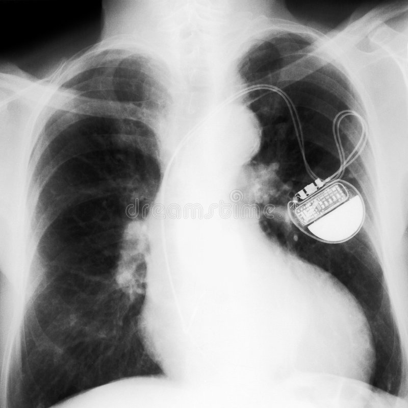 X-rayed chest stock image