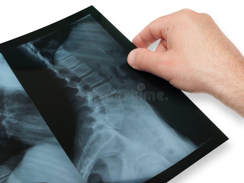 X- rayon photographie stock