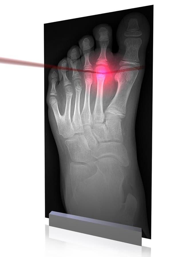 X-rays-4 ilustración del vector