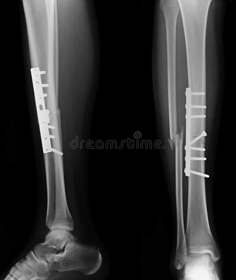 Free X-rays Image Of Leg Fracture Patients Stock Images - 95941374