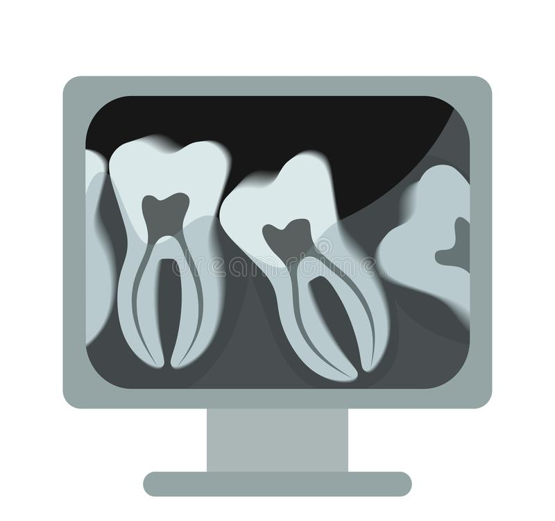 X-rays of the tooth on the computer. Vector, flat design stock illustration
