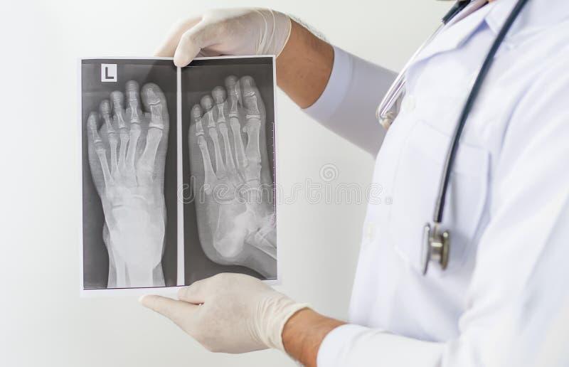X stråle av den främre sikten för fot, doktor som ser bröstkorgröntgenstrålefilmen, anatomi arkivbilder