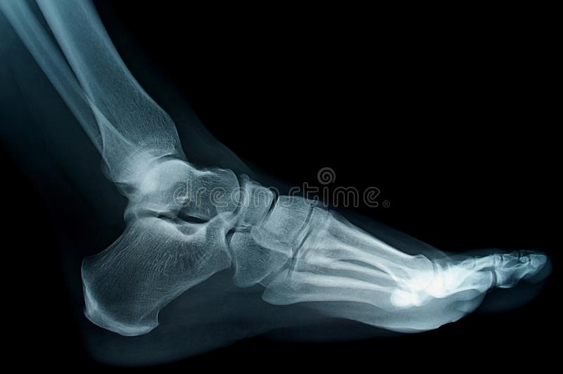 Xray. Human foot ankel and leg xray picture