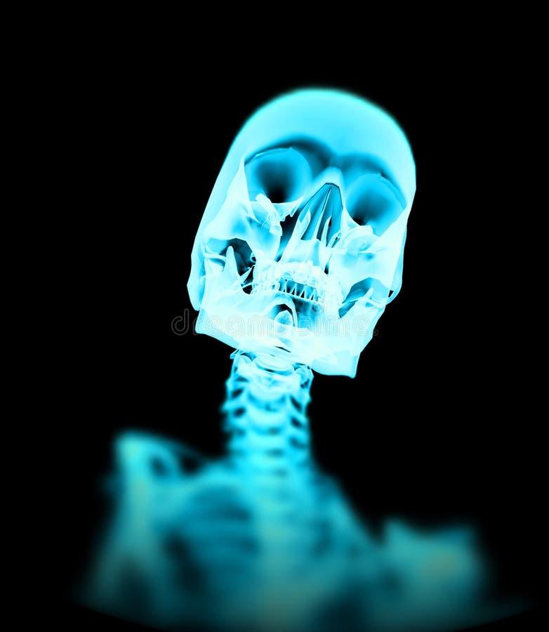 Download Xray Bone 5 stock illustration. Illustration of skeletal - 3319186