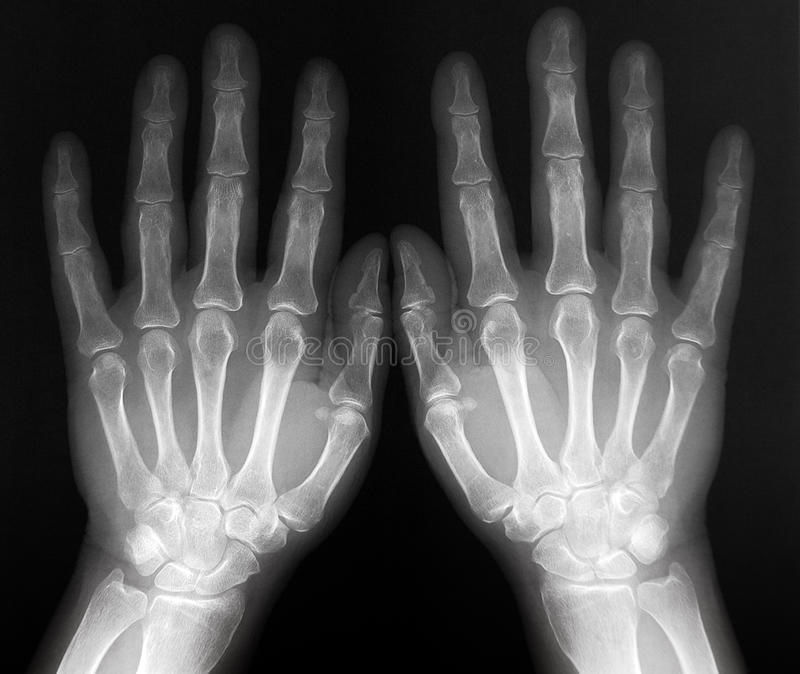 Xray of both hands - radiography stock photos