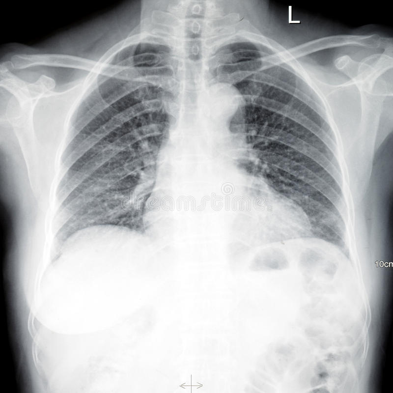 ct Xray chest scan film stock photography