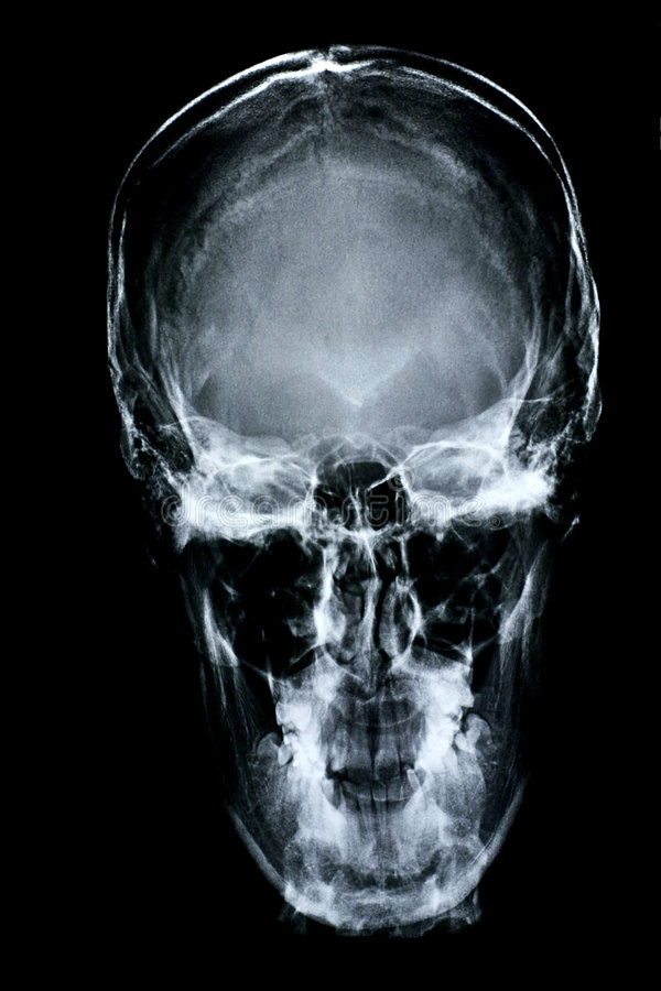 Download Xray/Face front stock image. Image of negative, medicine - 198829