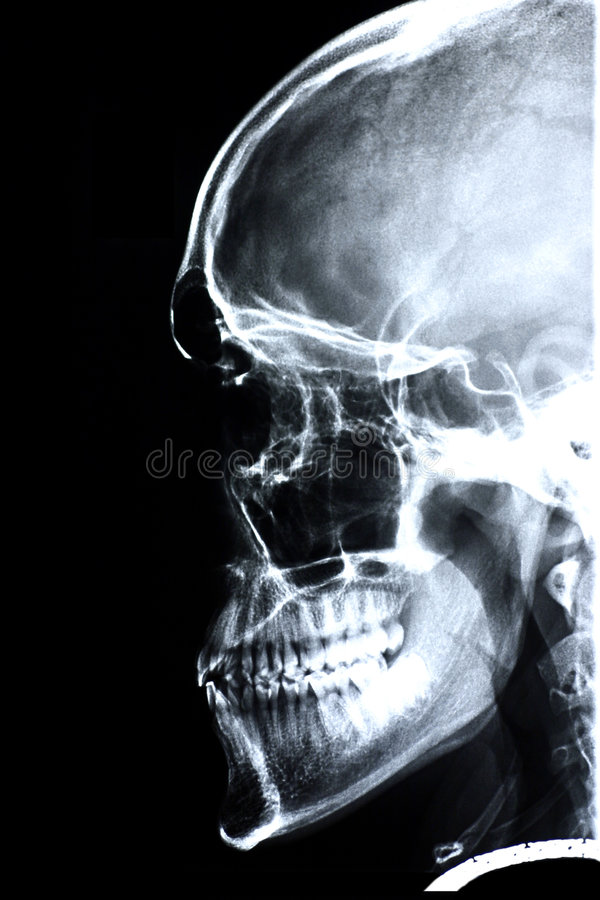 Xray/Face Side Stock Image