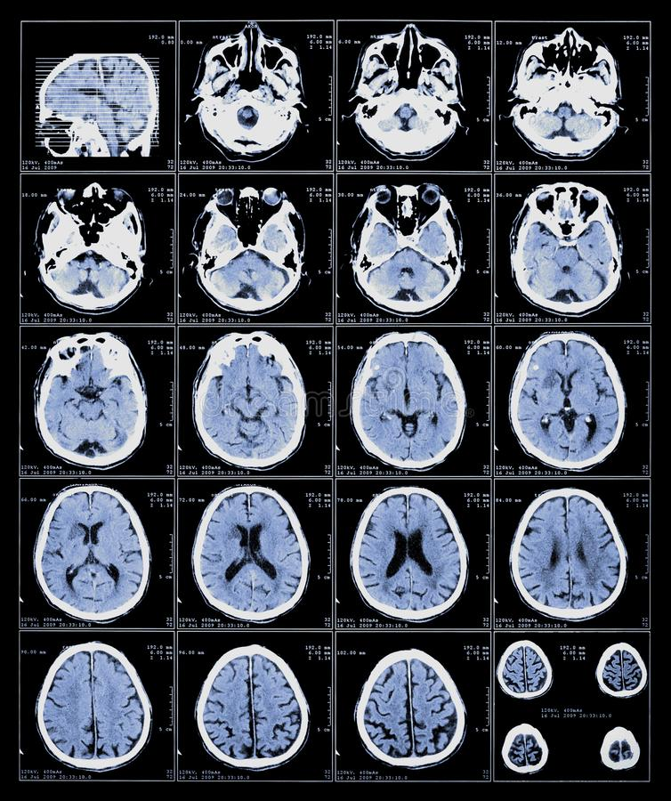 Xray film of the brain. Computed tomography, anatomy, background, black, body, bone, care, computer, diagnosis, diagnostic, disease, doctor, equipment, exam stock photo