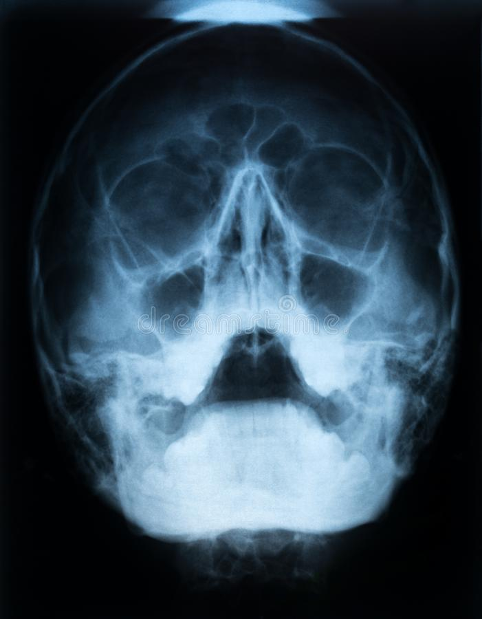 Xray film czaszka pacjent z paranasal sinus z ostrym prawym maxillary sinusitis z lotniczym rzadkopłynnym poziomem zdjęcia royalty free