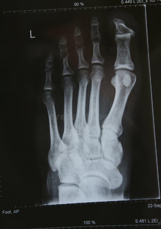 Download XRAY of a foot stock photo. Image of bone, closeup, shot - 6763922