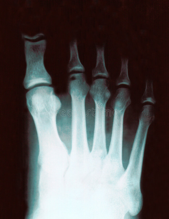 Xray of foot royalty free stock photography