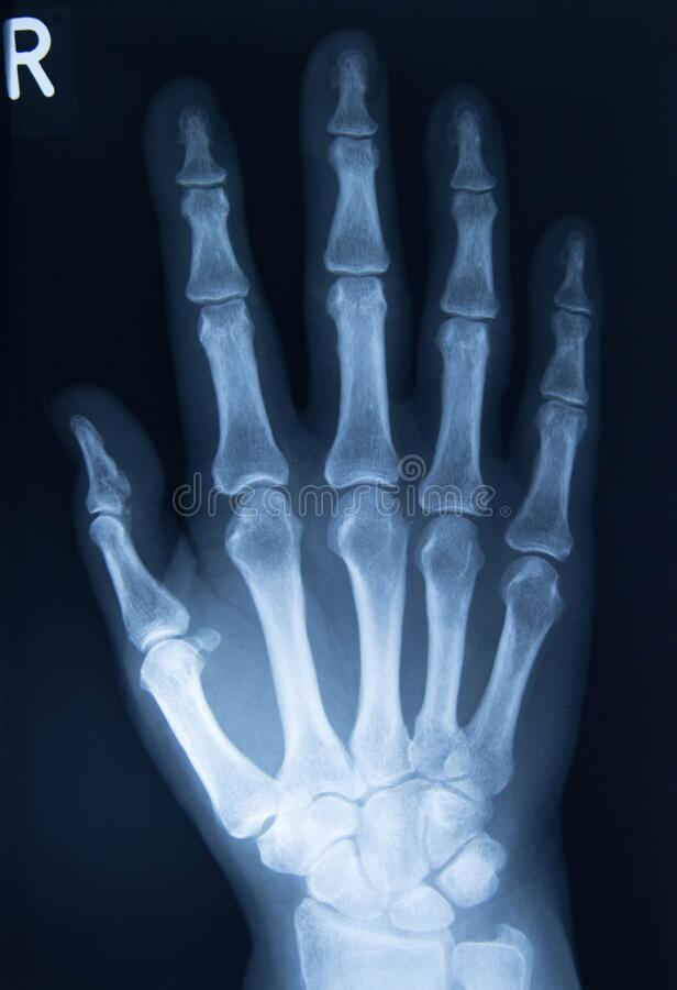 Xray of hand bones, right hand. Xray of hand bones affected by rheumatoid arthritis stock photos