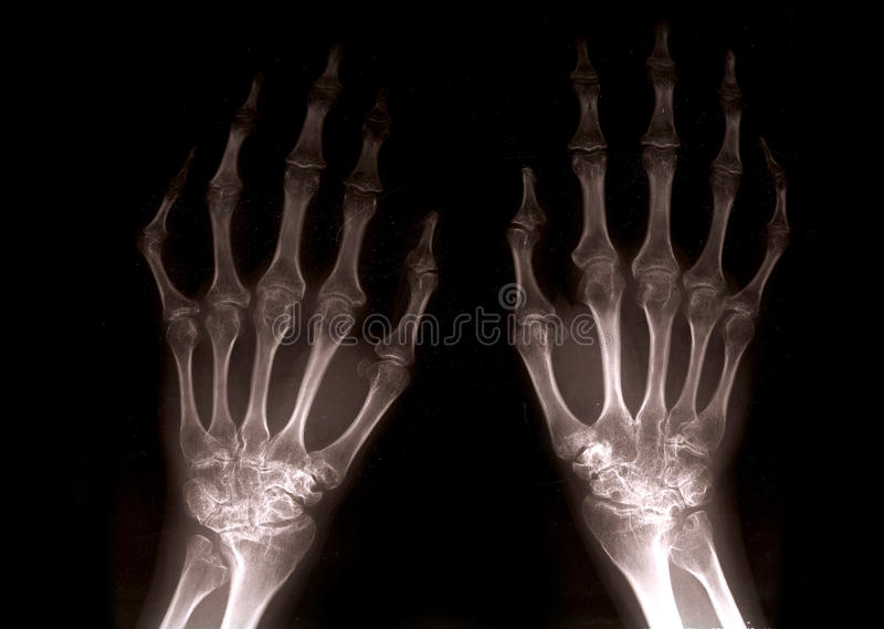 Download Xray hands stock illustration. Illustration of healthcare - 15000125