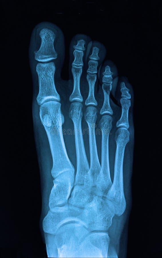 Nożny promieniowanie rentgenowskie zdjęcie royalty free