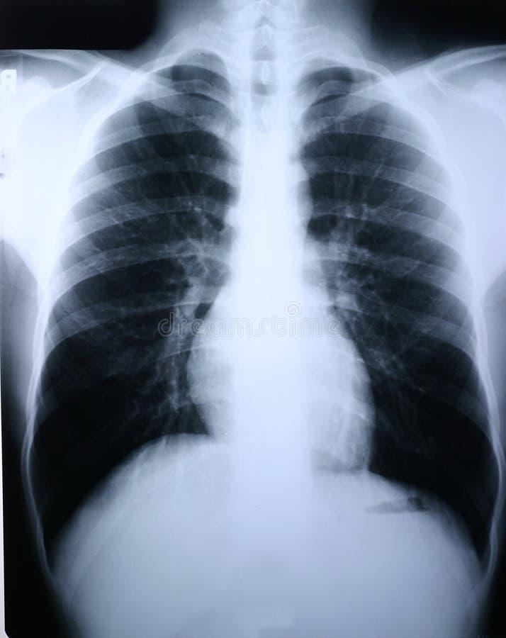 Download Xray płuc zdjęcie stock. Obraz złożonej z klinika, kości - 48064