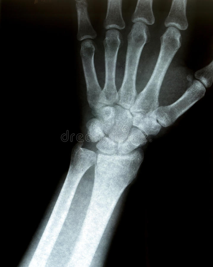 Download Xray of a wrist stock photo. Image of white, broken, science - 10761840