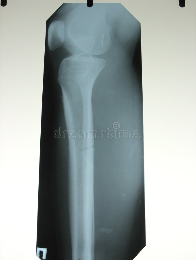 xray złamanej kości nogi zdjęcia royalty free