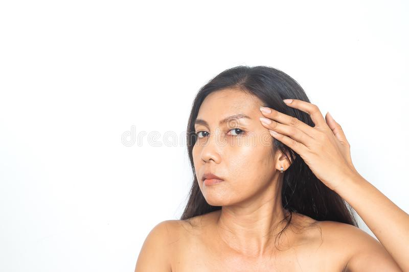 40-49 years Asian woman has problems on face. Beauty and health. Surgery stock photo