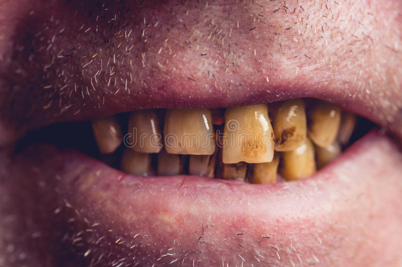 Yellow and curved teeth of a smoker covered with dental stone royalty free stock images