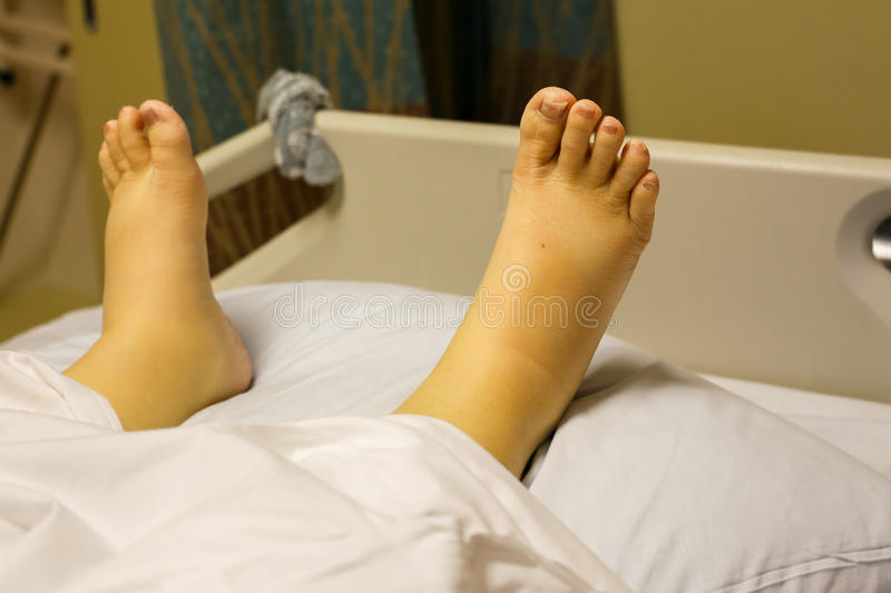 Yellow, swollen ankles and feet due to alcoholism stock photo