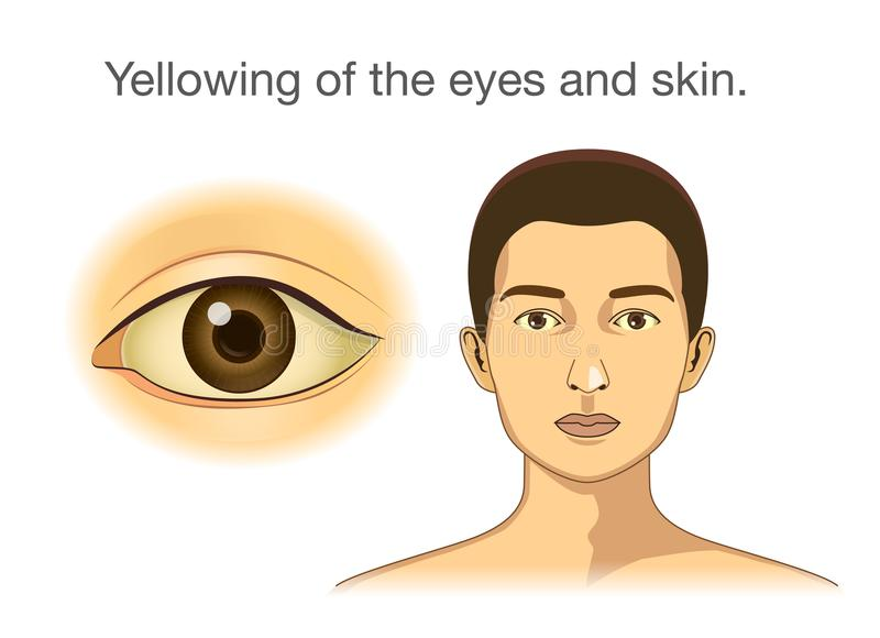Yellowing of the eyes and skin. vector illustration