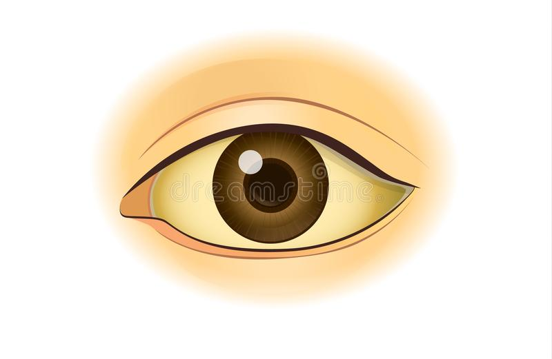 Yellowing in the human eye. stock illustration