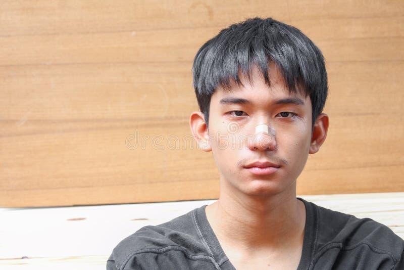 Yeso en nariz de la herida de lesión del hombre joven fotografía de archivo